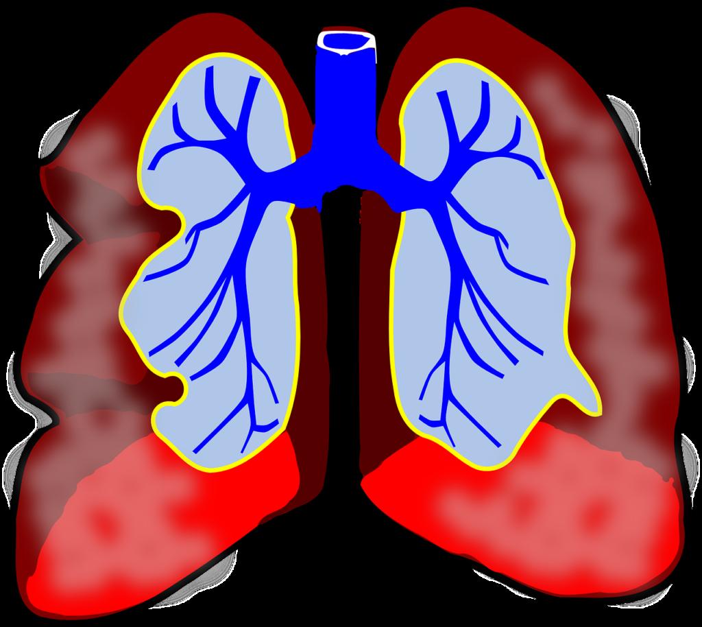 astman hoito ja liikunta, astmalääkitys