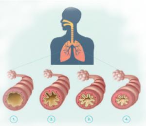 astman pahenemisvaihe, rasitus