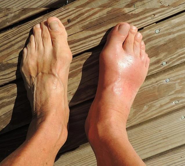 Jalkaterän kipu - fysioterapia - nokia - hämeenkyrö - tampere
